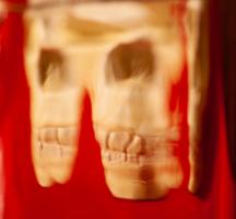 Красна изба зубами