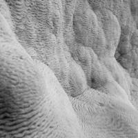 кальциевые отложения
